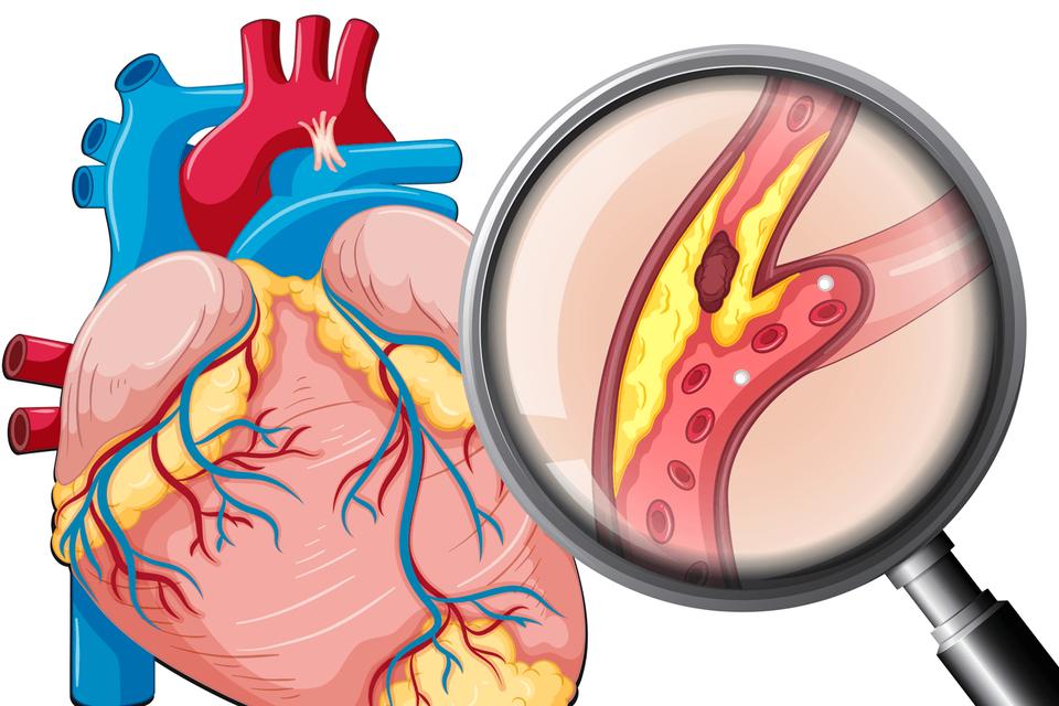 Bệnh mạch vành rất thường gặp